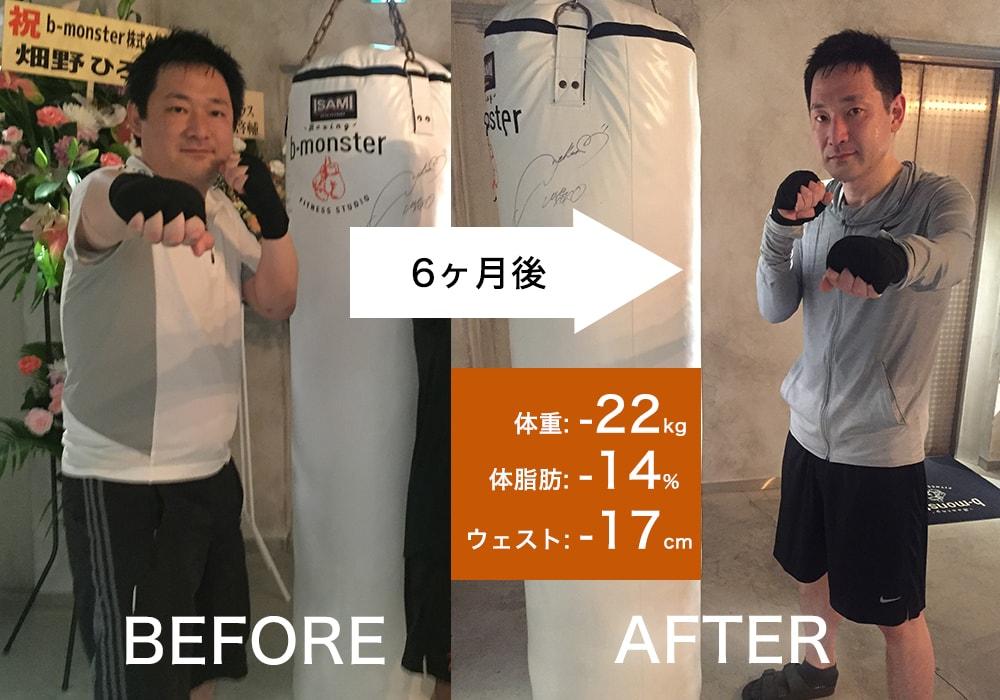戸川 慶亮さん Before After